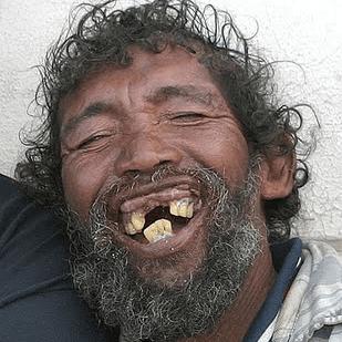 Zwerver Tanden Uiterlijk-belangrijk-voor-vrouwen