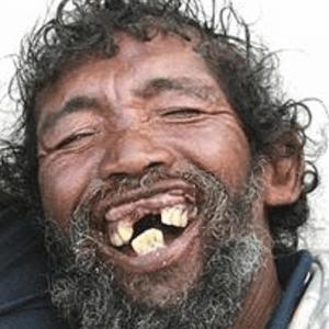 lachen zwerver tanden